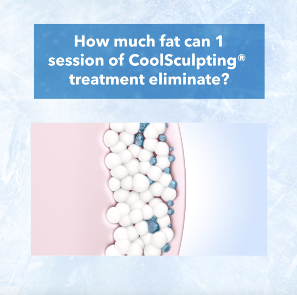 coolsculpting-giveaway-rm500-worth-of-grabfood-gift-cards-9f7ef5dd-2380-4bf2-bf3f-d789e05ded24